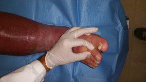 Lesioni-edemi Veno Linfatici