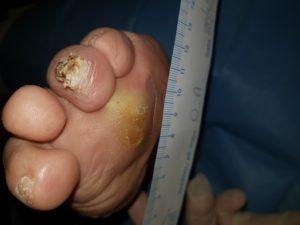 Lesione da Ipercarico